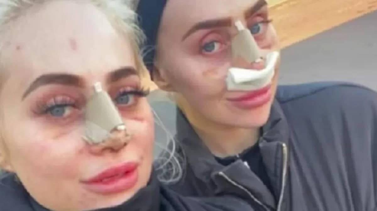 Dolly e Daisy Simpson gastam uma fortuna em cirurgias plásticas para ficarem idênticas. Imagem: Reprodução/Instagram